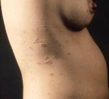 Döküntülü enfeksiyon hastalıkları