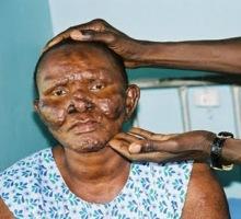 Lepra Cüzzam Hastalığı